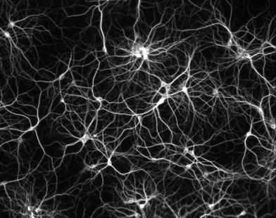 world-microscopic-wonders-brain-neurons